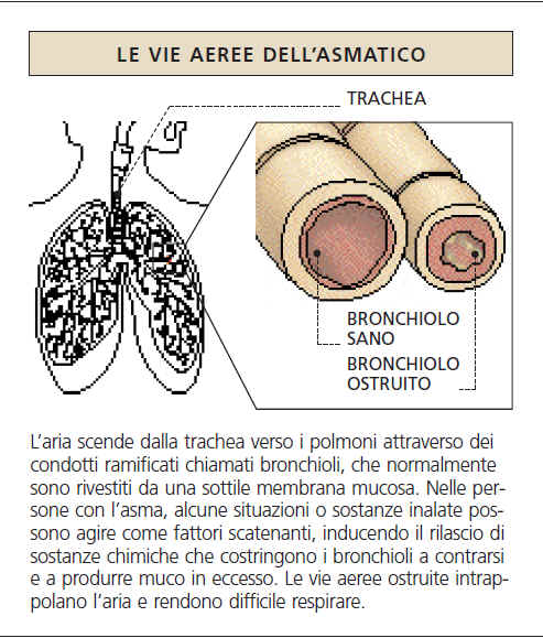 Le vie aeree dell'asmatico